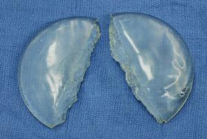 silikonove zvacsenie prs